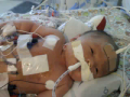 A touching story about the fight for life this newborn is going through.