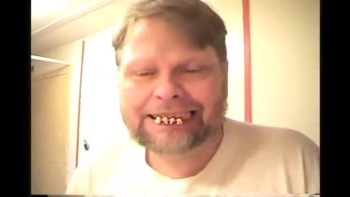 Dental hygiene lesson