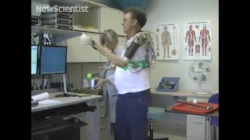 Amazing Bionic Arm