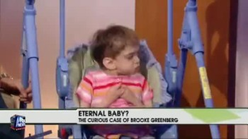 Brooke Greenberg - An Eternal Baby