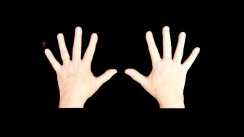 How Many Fingers?
