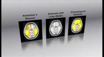 Imaging Dementia - Mayo Clinic