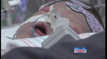 Miracle Baby Survives Being Born With Heart OUTSIDE Her Body