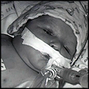 Baby Born with a 5 Percent Chance to Survive Beats the Odds